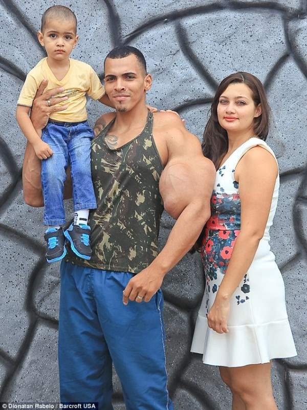 Он страдал депрессией и был госпитализирован, когда хотел покончить с собой, когда его жена была на 6 месяце беременности.