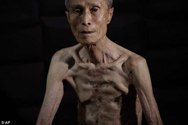 Постоянная боль: жена Сюмитери Танигучи по-прежнему втирает увлажняющий крем в его шрамы каждое утро, чтобы облегчить раздражение, в то время как его три гнилых ребра давят в легкие.