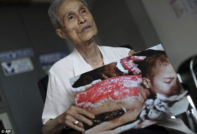 Г-н Танигучи, 86, является одним из многих десятков тысяч жертв, убитых или раненых атомным взрывом над Нагасакой 9 августа 1945.