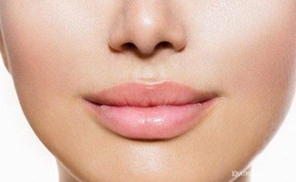 Увеличение объёма губ на основе гиалуроновой кислоты