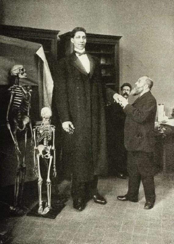 Самый высокий человек в мировой истории, Федор Махнов. Он был ростом 2,85 м (9,25 футов) в высоту и весил около 182 кг (401,24 фунтов). 1900-е гг.