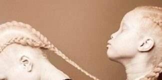 Близнецы-альбиносы