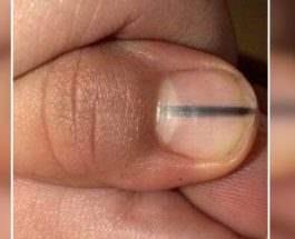 Полоса на ногте