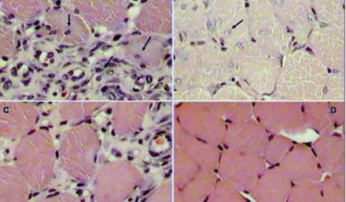 мышечные клетки