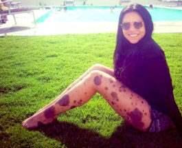 Лорена Боланос