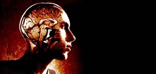 сканер мозга