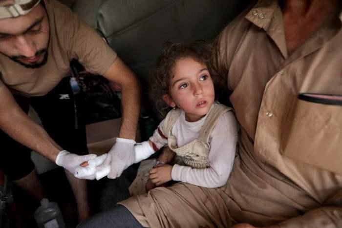 Раненая девочка в городе Таль Абьяд