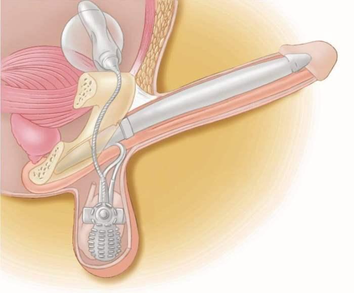 протез полового члена в пещеристых телах