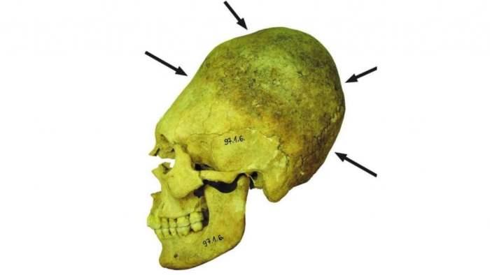 удлиненные черепа,черепа,Венгрия