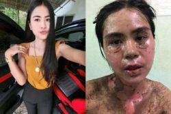 Ужасная аллергическая реакция женщины на ибупрофен, который заставил ее «гореть изнутри» (ФОТО 18+)