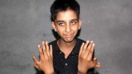 мальчик,дефект,лишние пальцы,