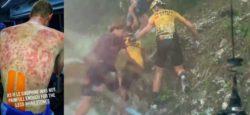 Синяки после града показал велосипедист Тим Деклерк