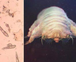 кожа, микробы,