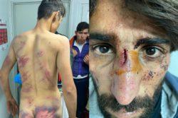 Хорватская полиция пытала, избивала, заставляла беженцев раздеться догола и лежать друг на друге