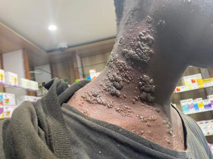 Сенегал, рыбаки, кожное заболевание,