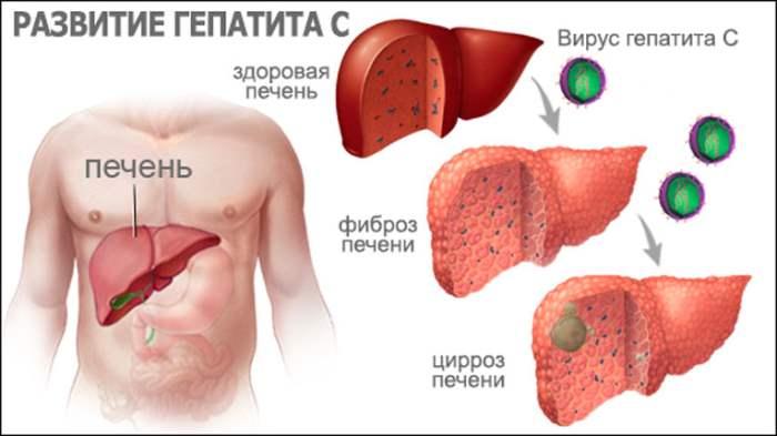 Гепатит C, лечение, гепатит,