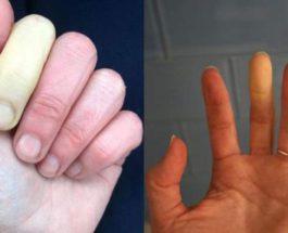 Синдром Рейно, феномен Рейно, пальцы,