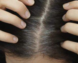 волосы, седина, здоровье,