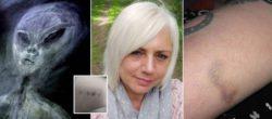 Британка говорит, что ее 50 раз похищали инопланетяне, и у нее есть синяки, чтобы доказать это