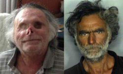 Вот что случилось с бездомным, лицо которого съел зомби-каннибал