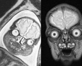 МРТ, беременные,