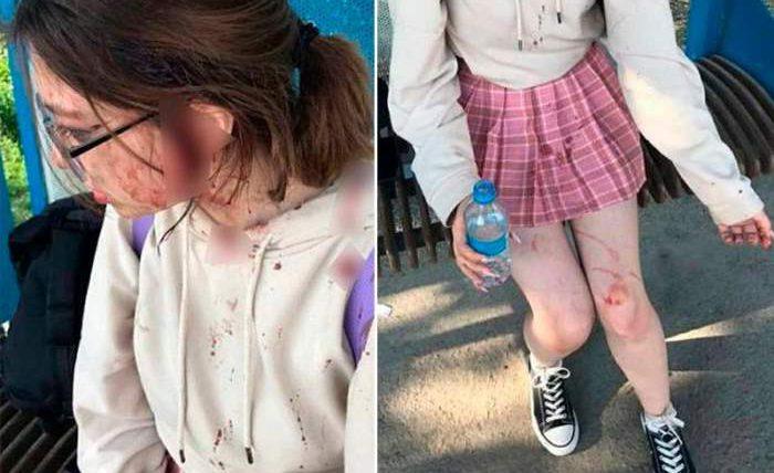 школьница, Алматы, избиение, одежда,