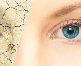 сухость глаз, синдром сухого глаза,