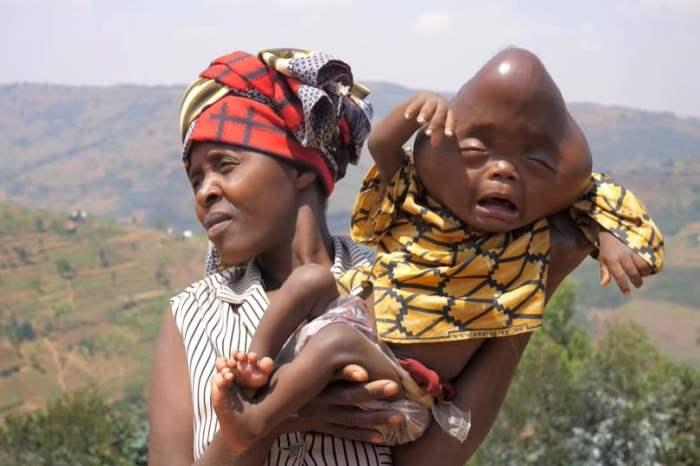 Баженеза Либерата, Руанда, Африка, ребенок, патология,