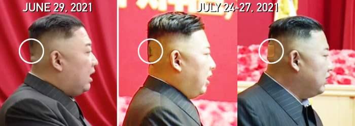 Ким Чен Ын, Северная Корея, затылок, пятно, травма,