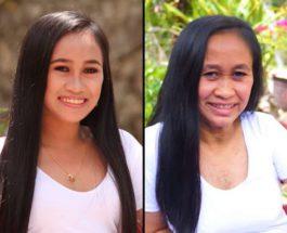 Райзель Калаго, прогерия, преждевременное старение, болезнь, филиппинка,